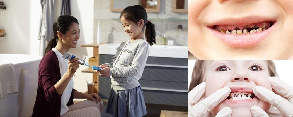 年轻爸妈的必修课:让宝宝爱上刷牙